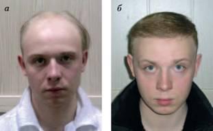Трансплантация волос отзывы