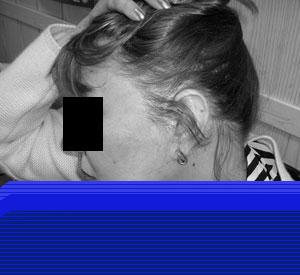 Как восстановить тонкие и редкие волосы которые поредели 30 лет назад